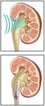 extracorporeal shock wave lithotripsy (ESWL)