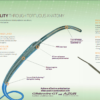 Terumo Progreat 2.7Fr. Microcatheter System MC-PP27131